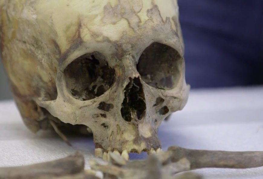 The Skull And Bones Of Hh Holmes Mysterious Chicago Tours